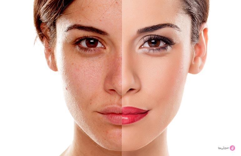 روشهای سفید کردن پوست آفتاب سوخته