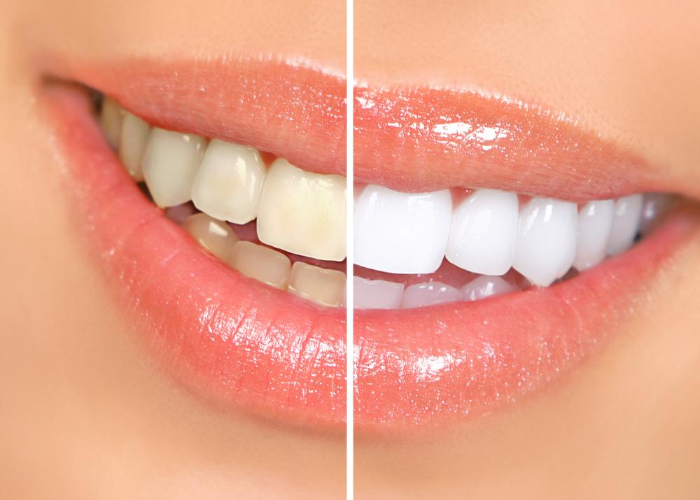 بلیچینگ (سفید کردن دندانها) چیست ؟