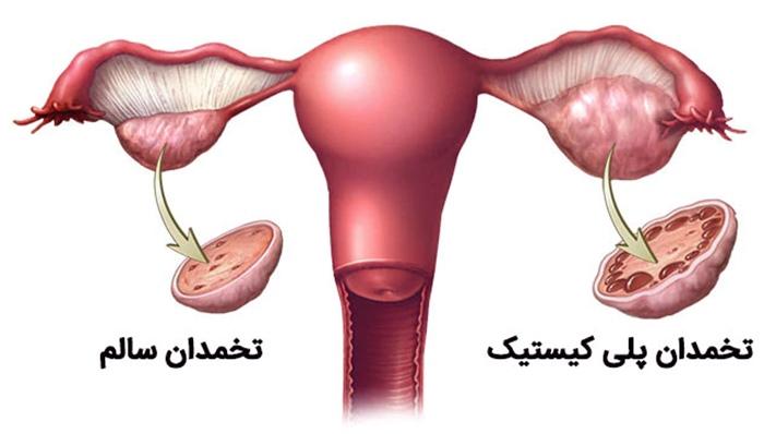 تنبلی تخمدان یا تخمدان پلی کیستیک : علل و درمان آن
