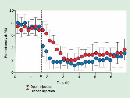 تفاوت سرعت و اثر بخشی مورفین وقتی بیمار تزریق رو میبینه و نمیبینه