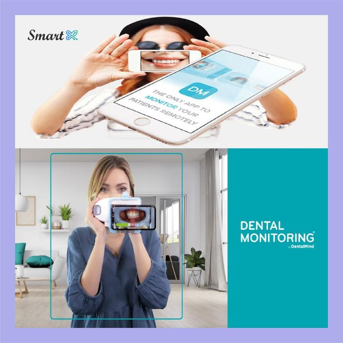 استارت‌آپ Dental Monitoring