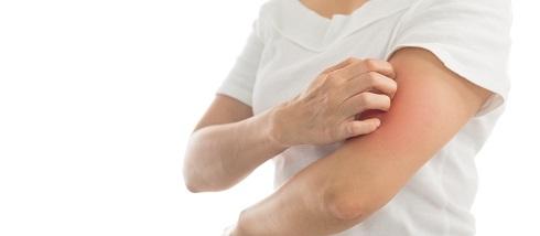 علت خارش پوست در هوای سرد چیست؟