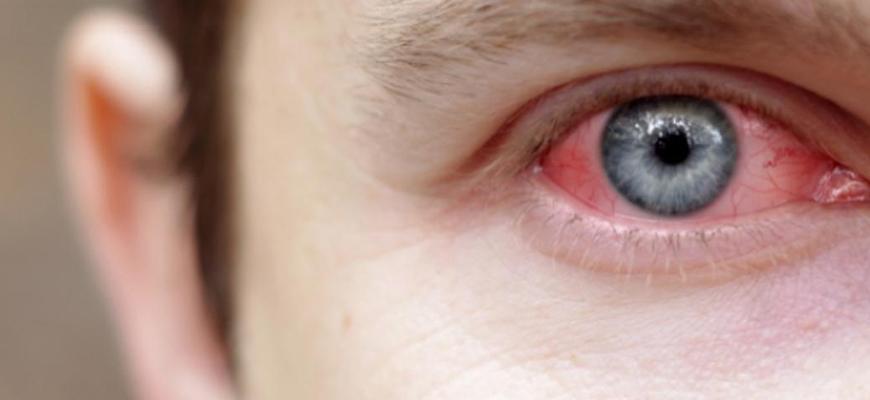 من بیماری چشمی یووئیت دارم!
