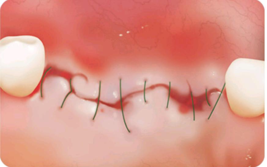 روش کاشت ایمپلنت با روش جراحی(روش معمولی)