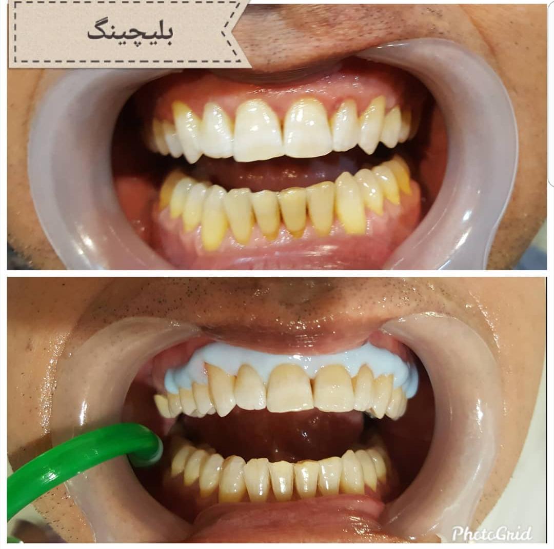 بلیچینگ در مطب یکی از روشهای سفید کردن رنگ دندانها