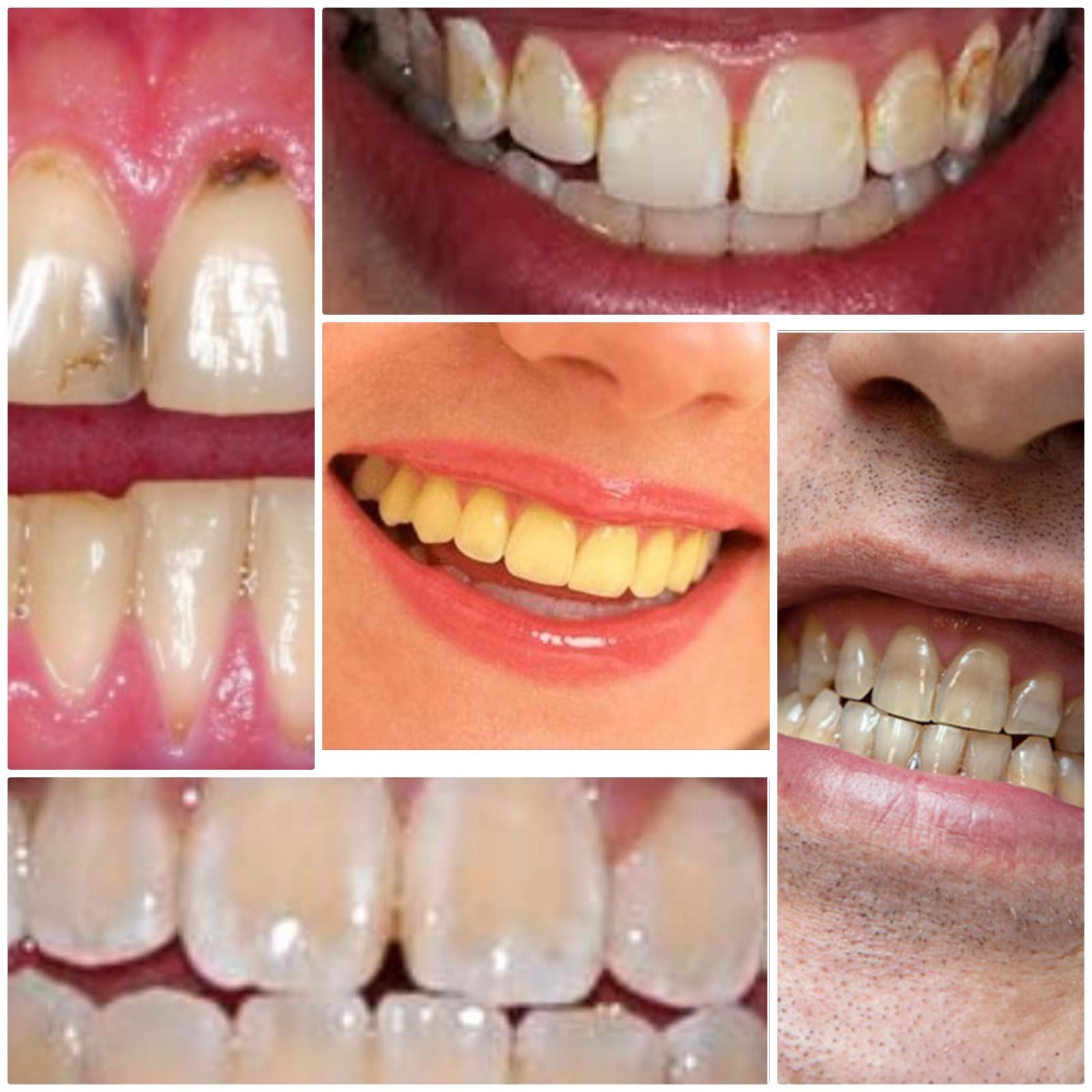 علل تغییر رنگ دندانها