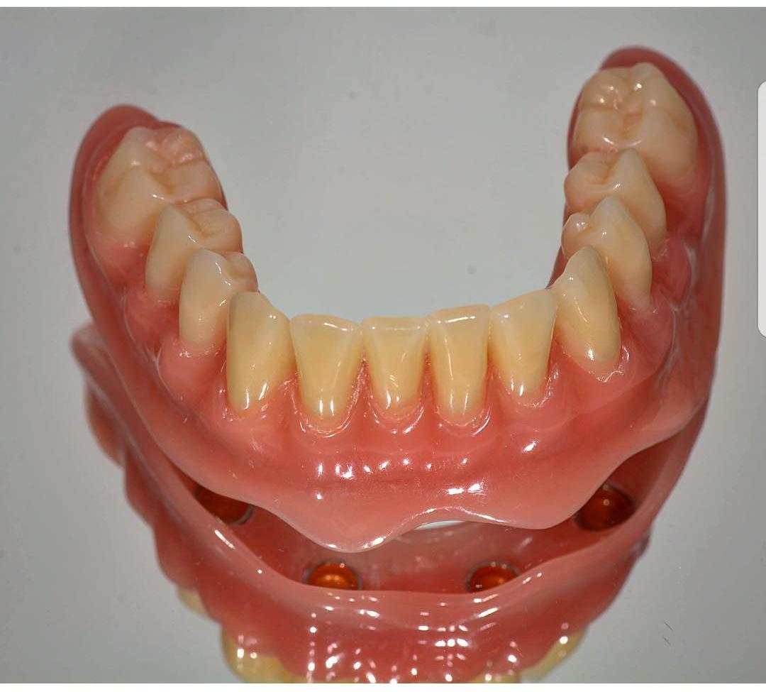 دست دندان مبتنی بر ایمپلنت