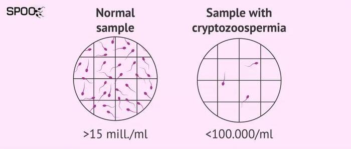 کریپتوزواسپرمیا ؛ علت، تشخیص، درمان