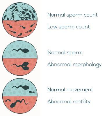 اختلالات اسپرم و ناباروری در مردان