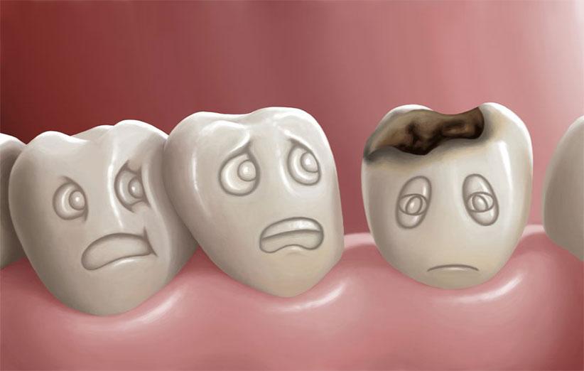 دندانی که شکست و خنده بر من حرام شد!