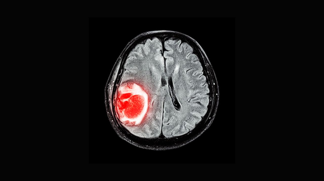 تومور مغزی چیست و درمان آن چگونه است