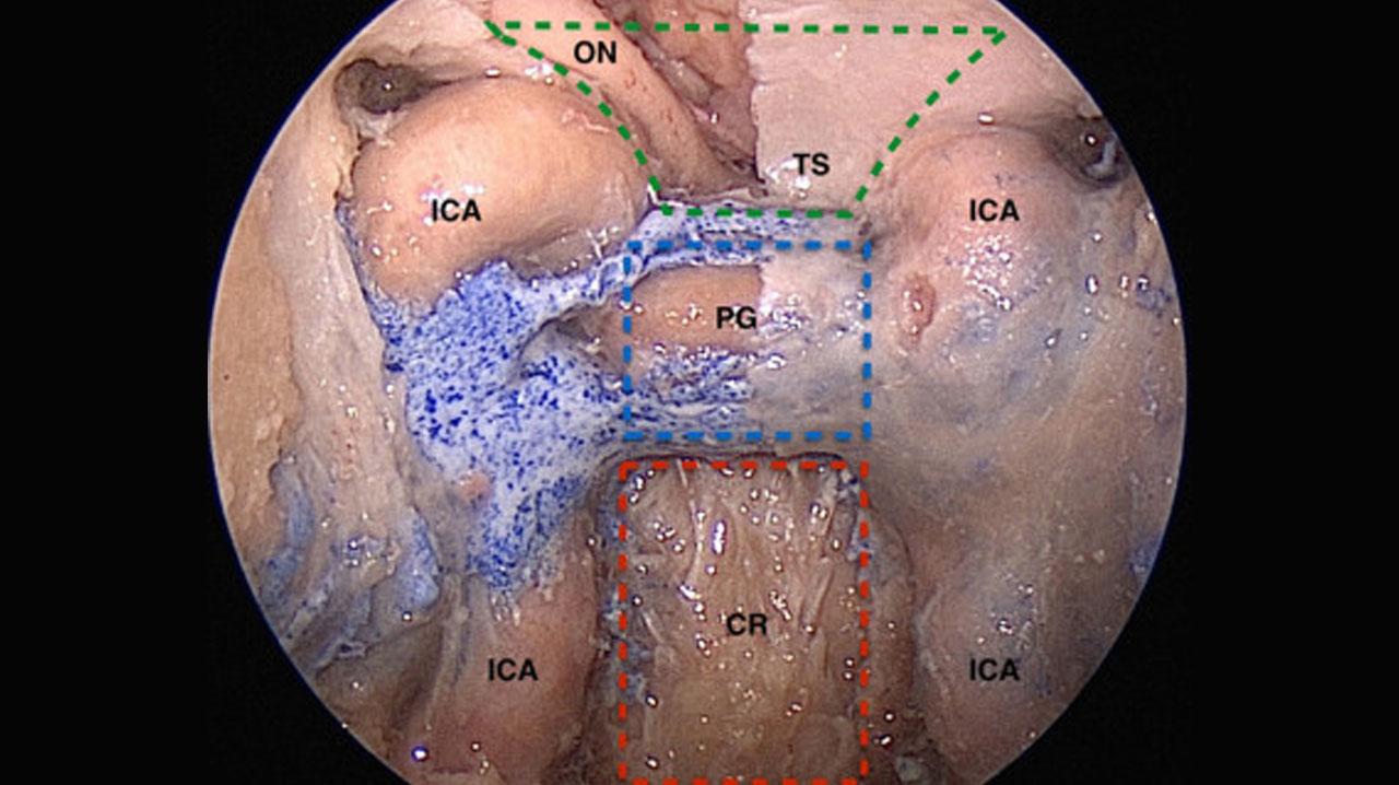 جراحی اندوسکوپی تومور هیپوفیز چیست