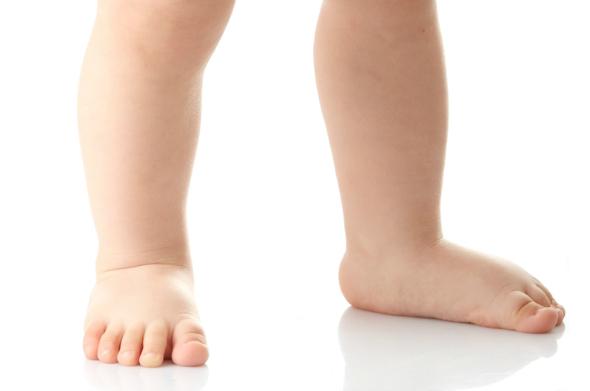کف پای صاف در کودکان [انواع، علائم، علت، تشخیص، درمان]
