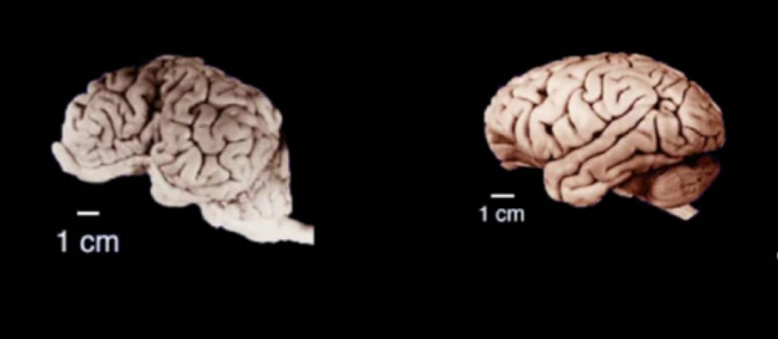 چه چیز مغز انسان ویژه است؟