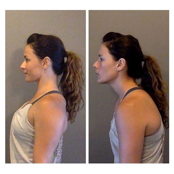 در وضعیت طبیعی خط شاقول از وسط لاله گوش عبور می کند(تصویر سمت چپ)، اما در صورتی که سر جلوتر قرار گرفته باشد، گوش خارجی در امتداد خط شاقول واقع نمیشود، بلکه جلوتر قرار دارد.