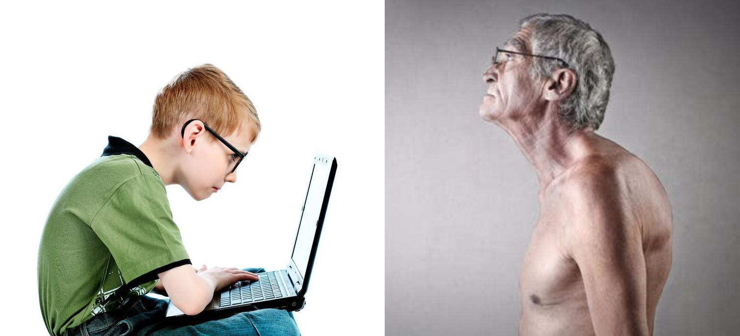 رویش استخوان اضافی در پشت گردن، تا یک دهه پیش تنها در بدن برخی افراد سالمند قابل مشاهده بود.