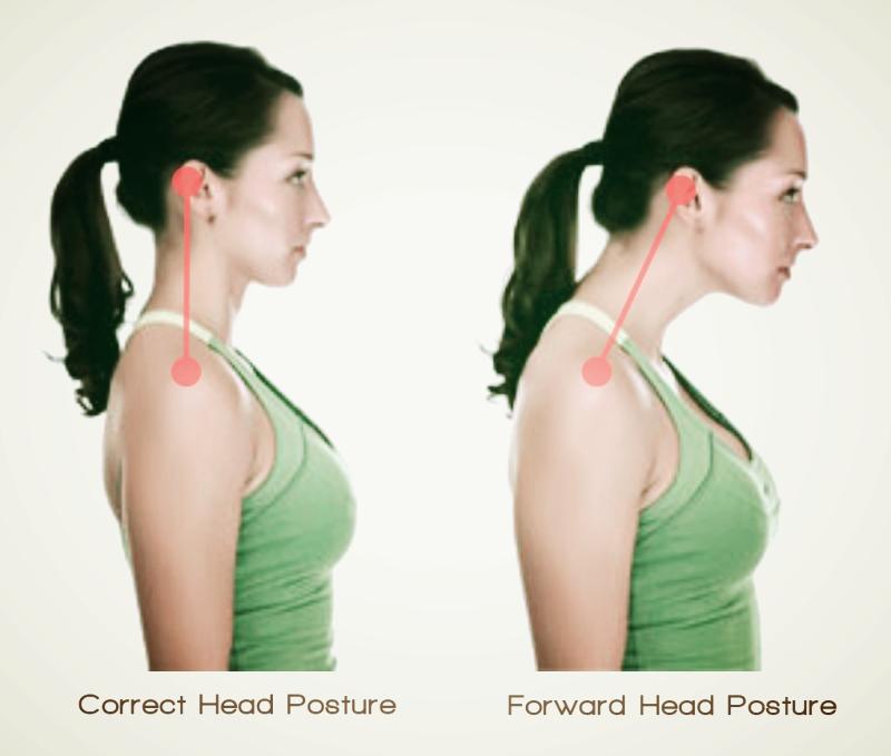 عکس ناهنجاری سر به جلو: در این ناهنجاری سر جلوتر از گردن قرار دارد، درحالی که لاله گوش و وسط بازو در یک راستا نیستند.