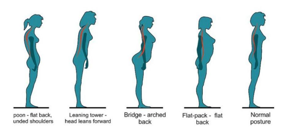 حالت قرارگیری مناسب بدن، ستون مهرهها را هم تراز کرده و از فشار بیهوده بر مفاصل جلوگیری میکند.