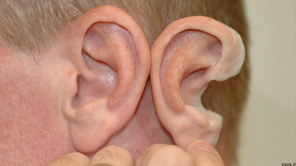 گوش مصنوعی، معجزه چاپ سه بعدی