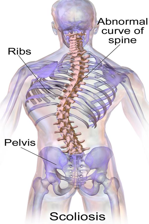 اسکولیوزیس (Scoliosis)_بخش اول