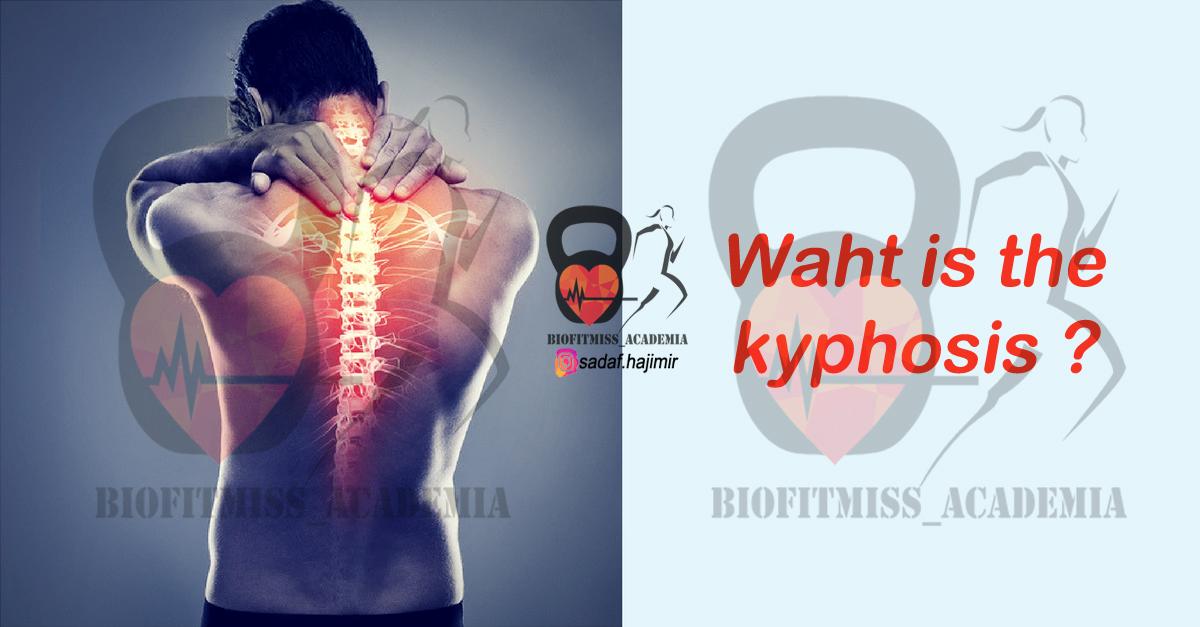 کایفوز (kyphosis)