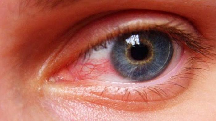 بهداشت چشم در کار طولانی با رایانه