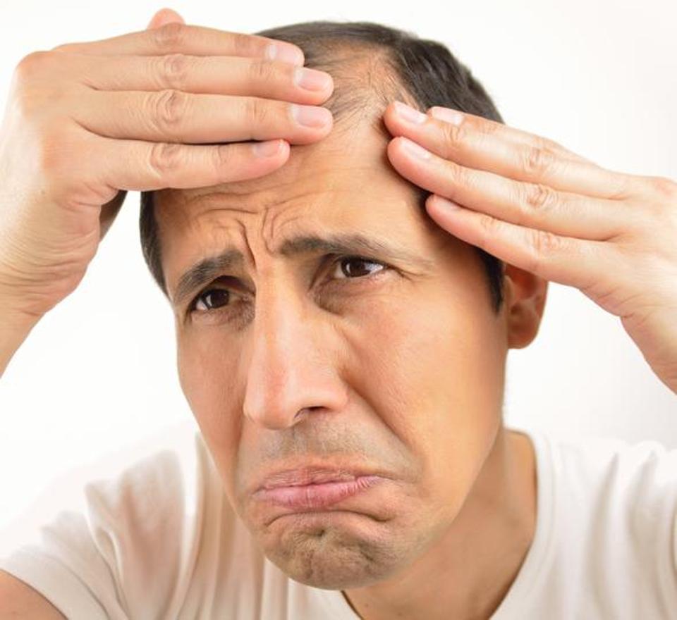 ریزش مو در پراید یا بنز