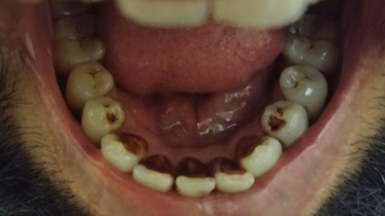 وجود جرم در روی دندان ها و لثه ها عامل بسیاری از بیماری های لثه و  خرابی های دندان است.