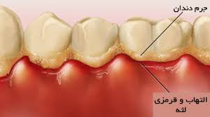 لثه، دندان و درمانی عجیب و حیرت انگیز