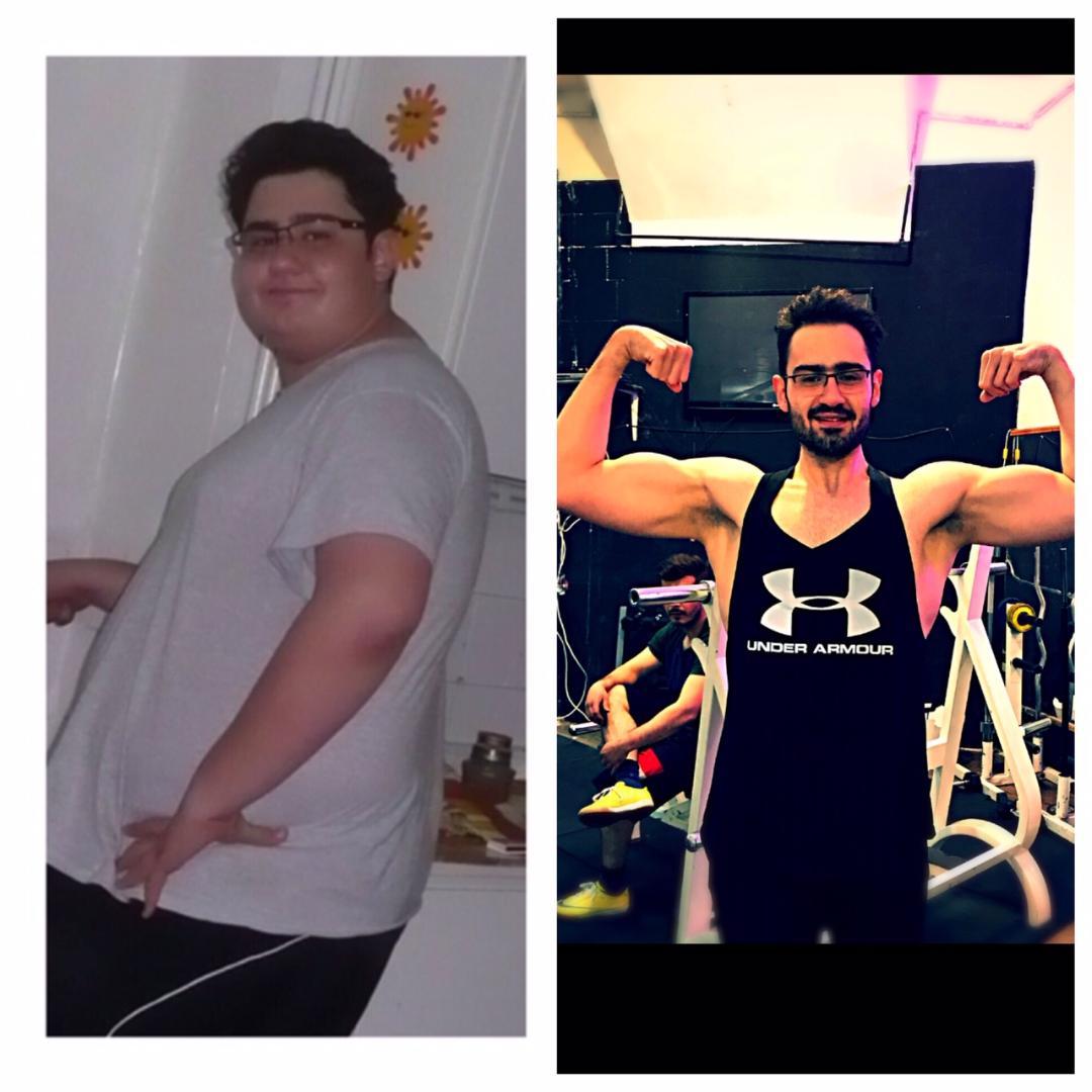 چطور 65 کیلو لاغر شدم؟(قسمت دوم-شروع سخت)