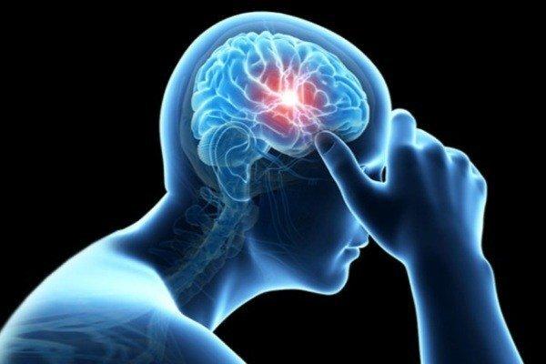 هر آنچه درباره سکته مغزی باید بدانید