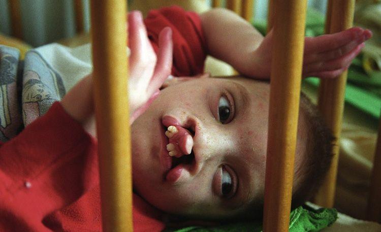 تاثیر ژنتیکی انفجار چرنوبیل روی نسلهای آینده